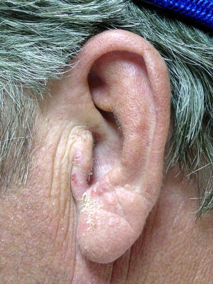 Contact dermatitis of the ear  Ear Canal Swollen Shut