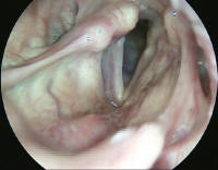 Right True Vocal Cord paralysis - Compenstated