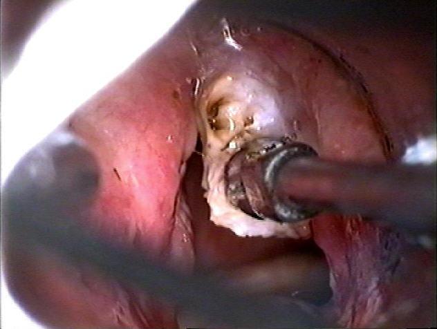 laryngoscopy. laryngoscopy