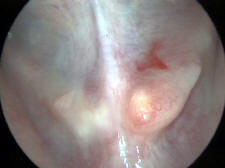 Salivary Gland Stone in Warthin's Duct