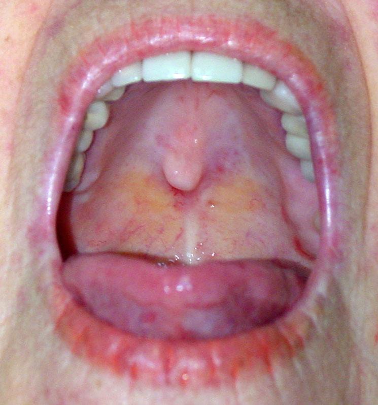 Рак гортани - это злокачественные новообразования, которые возникают во всех отделах гортани Фото: опухоль горла...