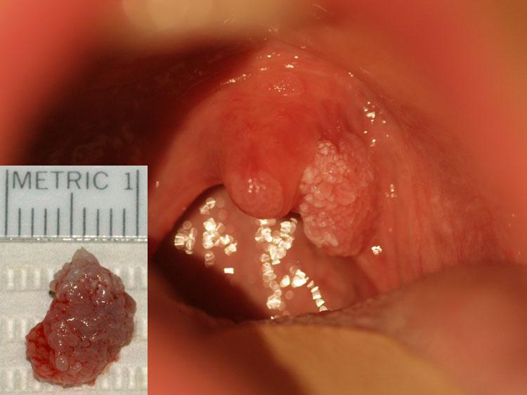 Szemölcs a torokban - Papilloma oka az uvulán