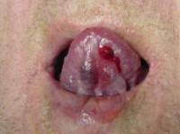 Lingueal Hemangioma