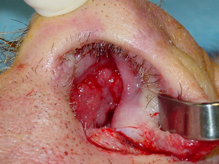 Squamous papilloma of nasal vestibule. Nasal vestibule papilloma